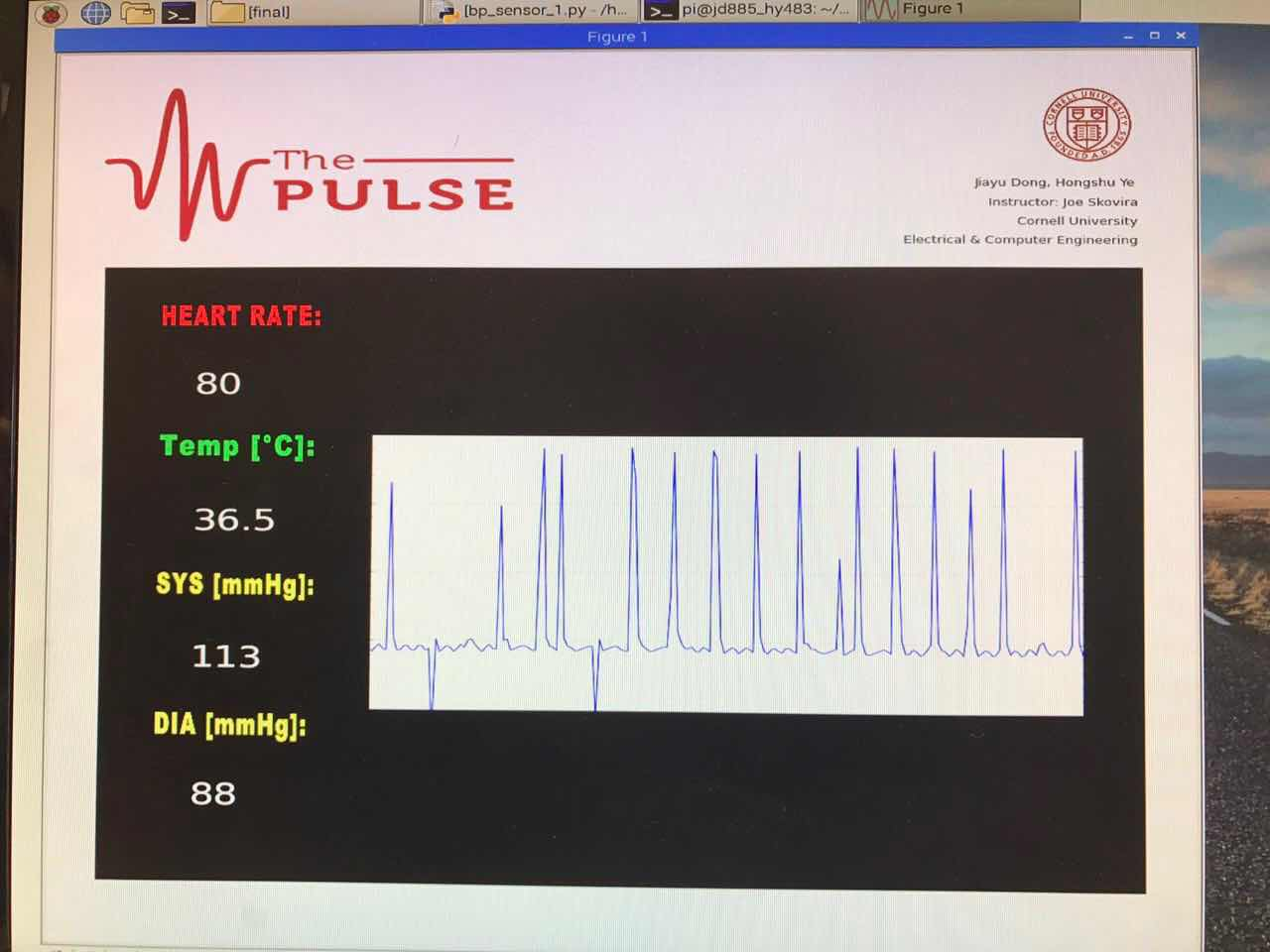 Raspberry Pi Controlled Health Monitor System